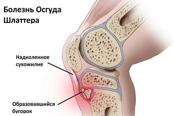 Este posibil să încălziți articulația cu durere)