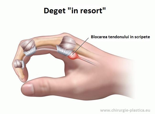 durerea degetului arătător în articulație