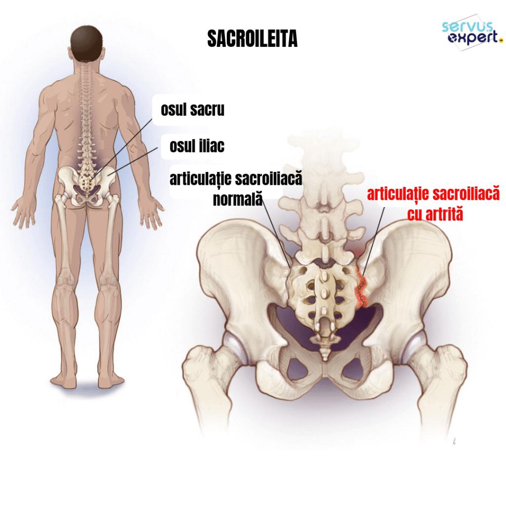 Disfunctia articulatiei sacroiliace, cauza a durerii lombare