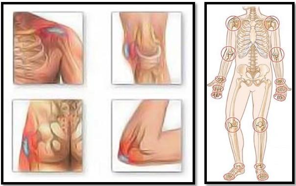 Mușchii și articulațiile întregului corp doare. Tratarea conurilor de gută pe articulații