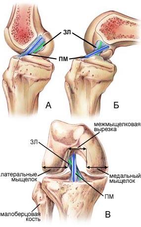 tratați o articulație ruptă