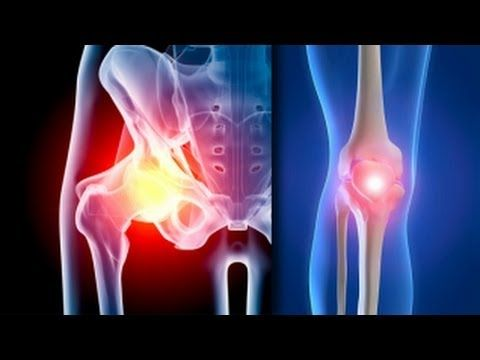 Prezentarea tratamentului cu artroză