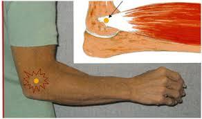 Epicondilita – cauze, simptome si tratament