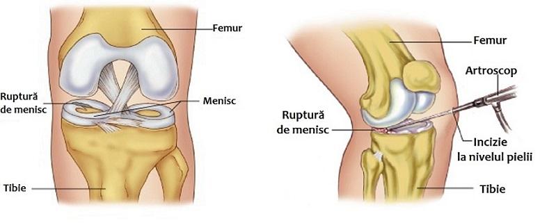 durere în articulația genunchiului după îndepărtarea meniscului)