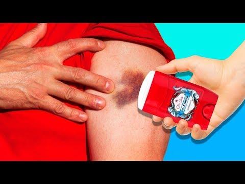 tratamentul artrozei deformante a articulației umărului 2 grade)