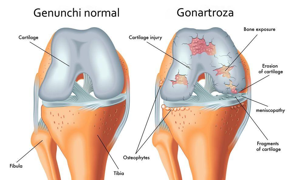 artroza articulației genunchiului este cel mai eficient tratament)