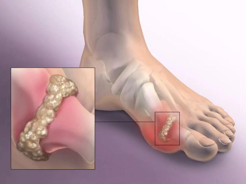полоски для лечения суставов