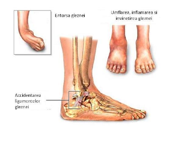 Durere la glezna la sarit - Cum poti preveni durerile în zona tibiei dupa alergare