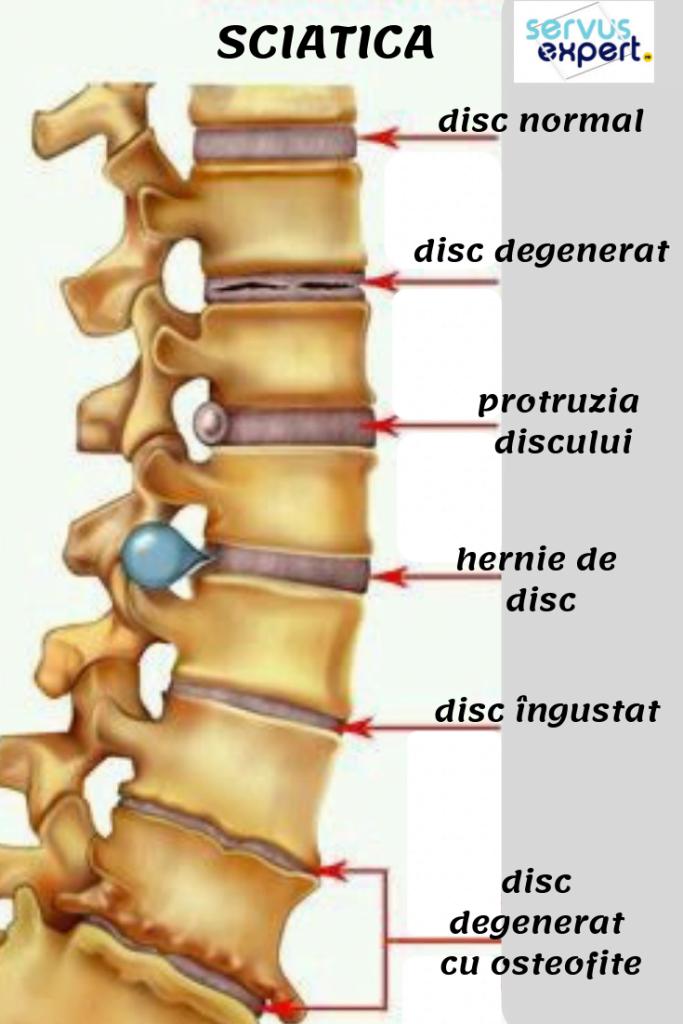 remedii pentru durerea articulațiilor și a coloanei vertebrale)