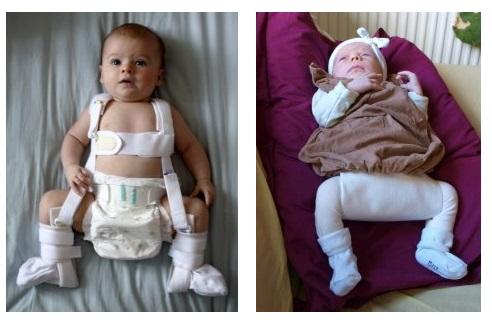 Displazia de șold la bebeluși - cauze și tratament - thecage.ro
