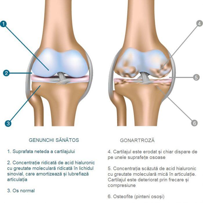 tratamentul eficient al articulațiilor genunchiului
