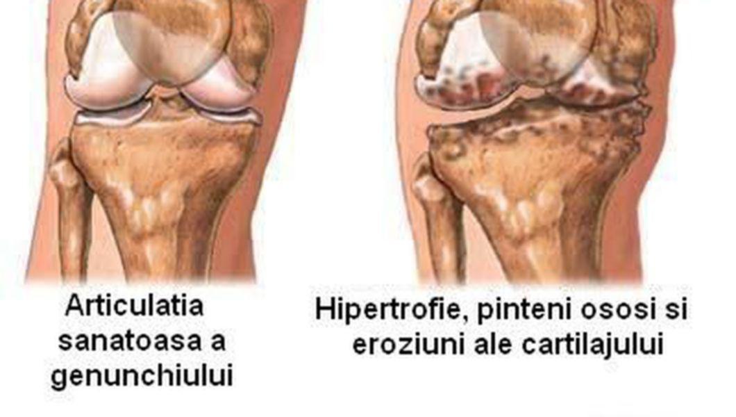 semne ale artritei genunchiului)