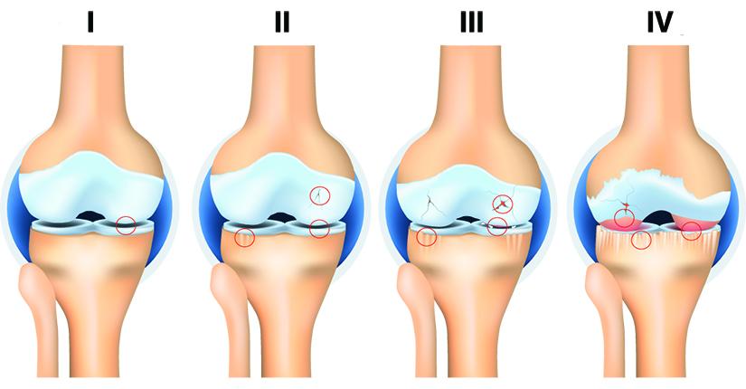 artroza articulației deteriorate)