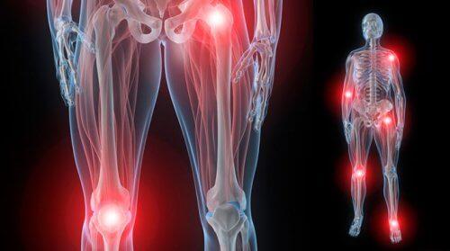 durere în articulația degetului mare al mâinii drepte alergând cu osteochondroza genunchiului