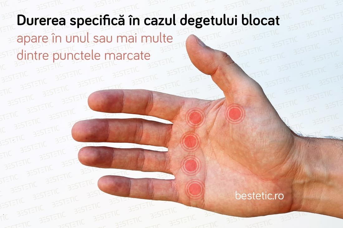 dacă mâna mâinii doare