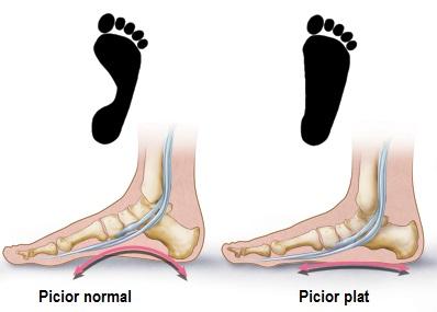 adâncit deasupra articulației piciorului ce este cum să tratăm artrita și artroza cu bilă