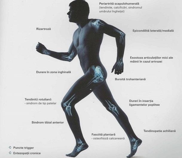 Tratament cu artroză cu unde de șoc, Cum să te salvezi de durerea articulară