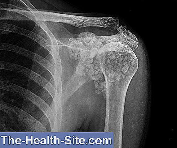 artroza semnelor radiologice ale articulației umărului)