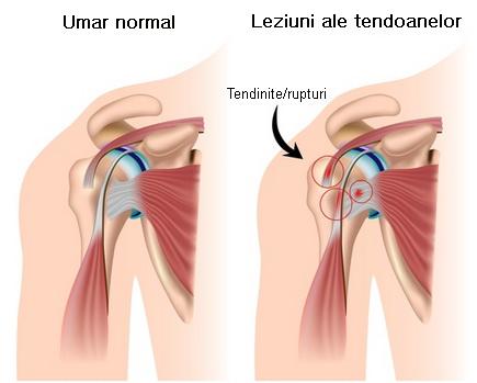 dureri severe la nivelul articulației umărului și cotului)