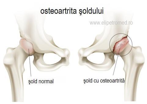 Reumatismul (poliartrita progresivă, artrita reumatoidă)