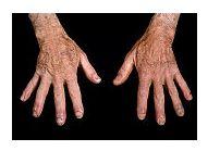 dureri articulare lupus eritematos)