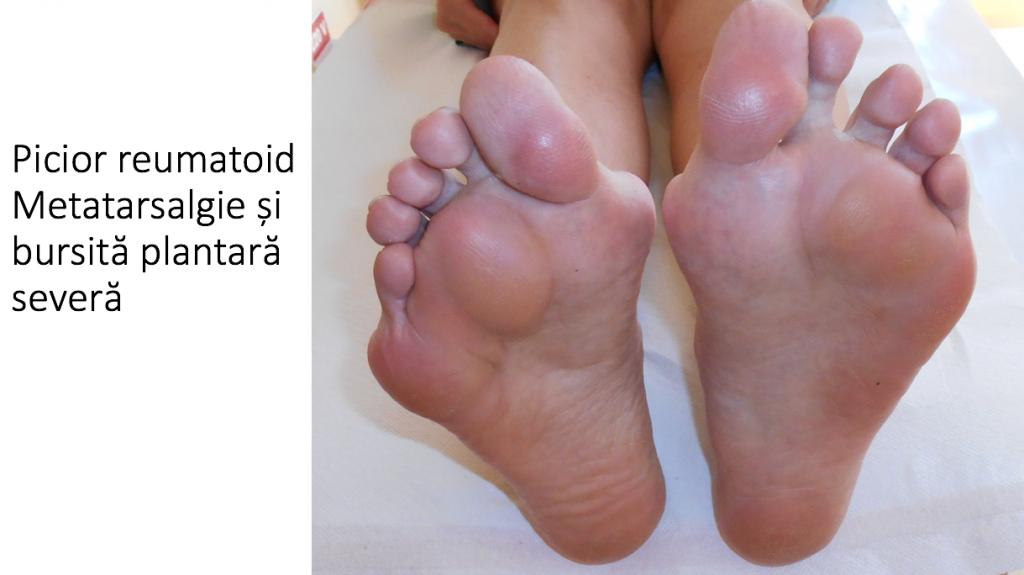 dureri articulare sub cot cu artrita articulației umărului ce trebuie făcut
