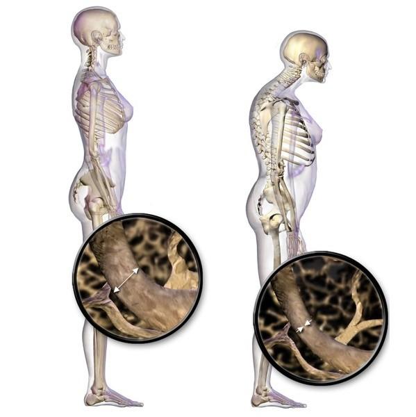 tratați articulațiile și coloana vertebrală înainte de tratamentul articulației umărului stâng