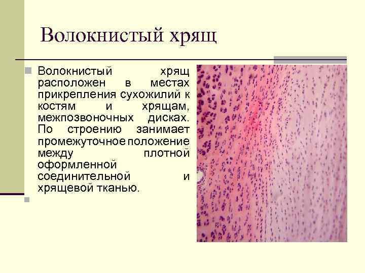 thecage.ro - Ţesutul conjunctiv (5)