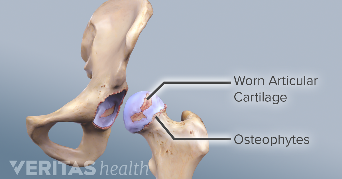 cum să-ți tratezi propria articulație de șold