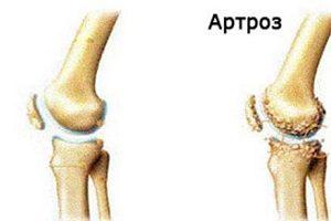 opriți artroza genunchiului