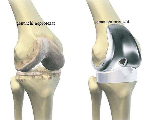 Proteza totala de genunchi - thecage.ro
