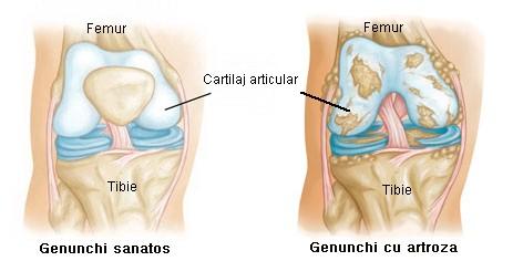 osteoartrita medicamentelor articulației genunchiului)