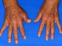 boala artrita degetelor