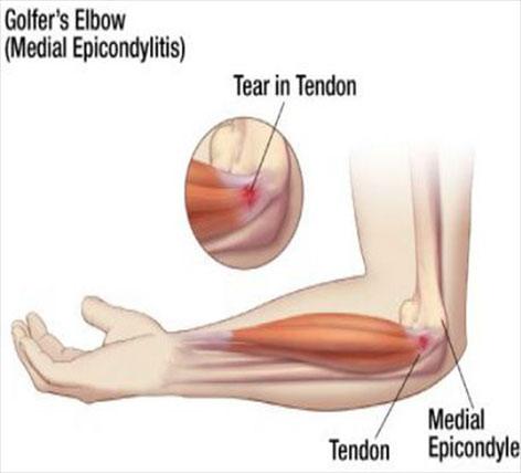 tratamentul inflamatiei epicondilitei cotului