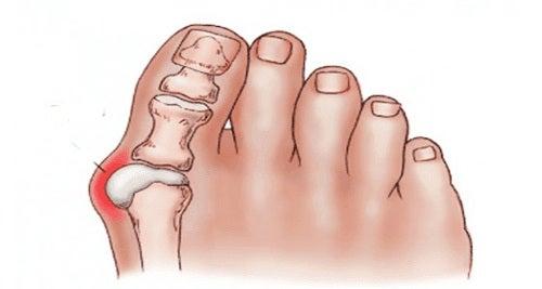 comprimate pentru tratamentul articulațiilor degetelor de la picioare)