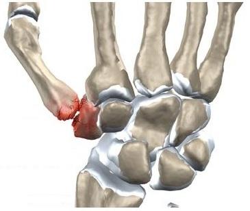 Durere ascuțită în degetul mijlociu de mâna dreaptă,