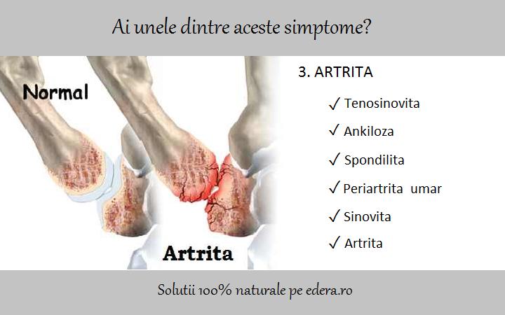 artrita periartrita articulației umărului