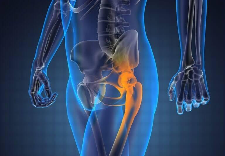 cum se tratează osteoporoza articulației șoldului unguent pentru articulațiile umărului