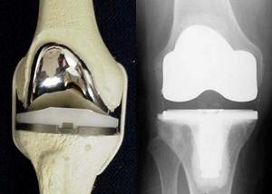 железный коленный сустав