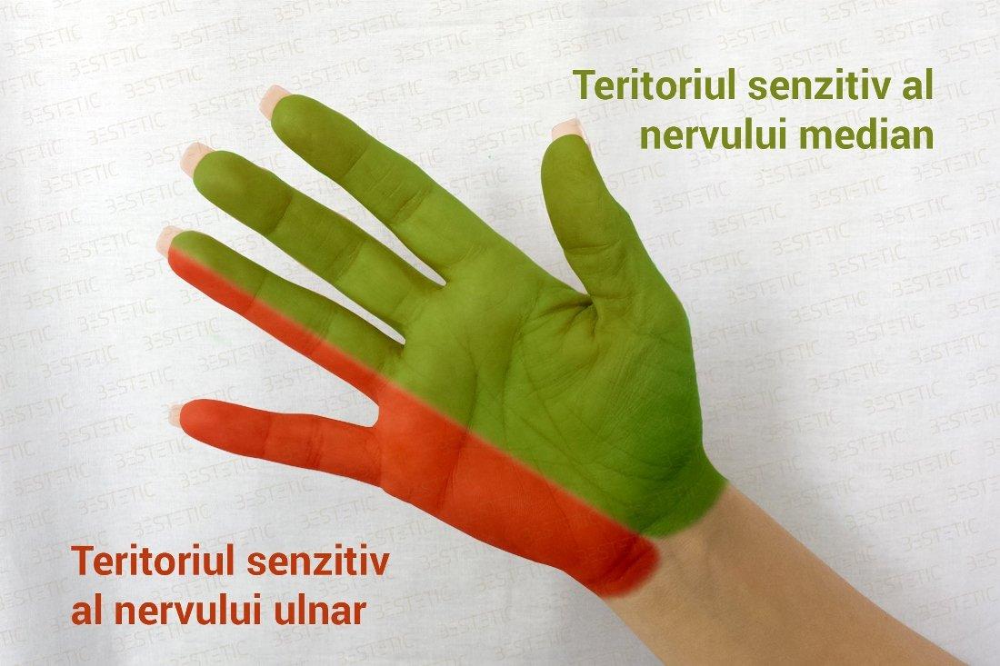 dureri de cot și amorțeală a degetelor)