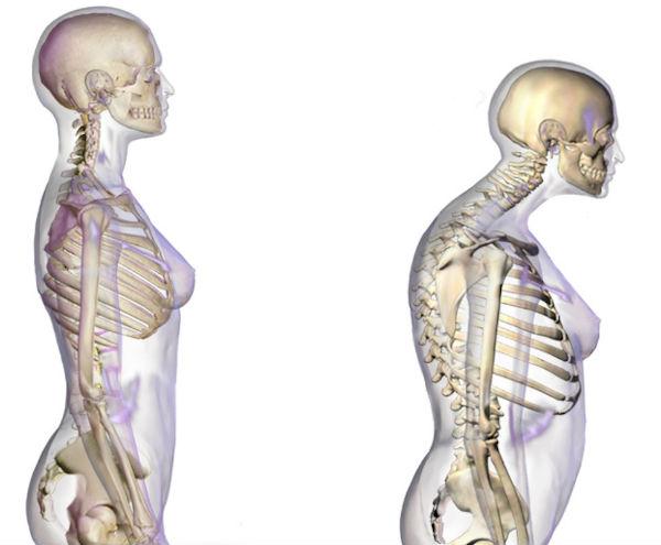 tratamentul osteoporozei la șold