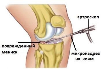 articulațiile pe picioare sunt foarte dureroase