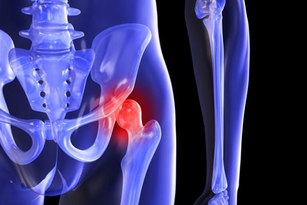 durere severă în tratamentul articulației șoldului