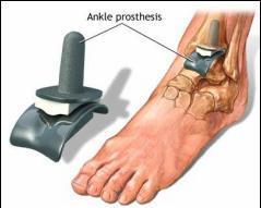 epifizioliza tratamentului articulației gleznei