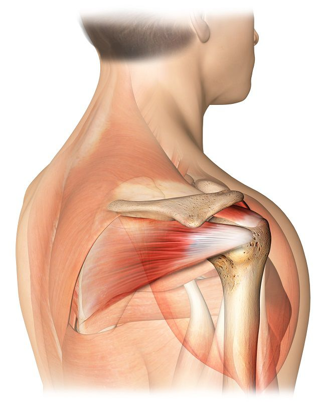Deteriorarea manșetei rotative a tratamentului articulațiilor umărului