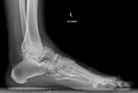 Scleroza plăcii subcondrale a tratamentului articulației genunchiului