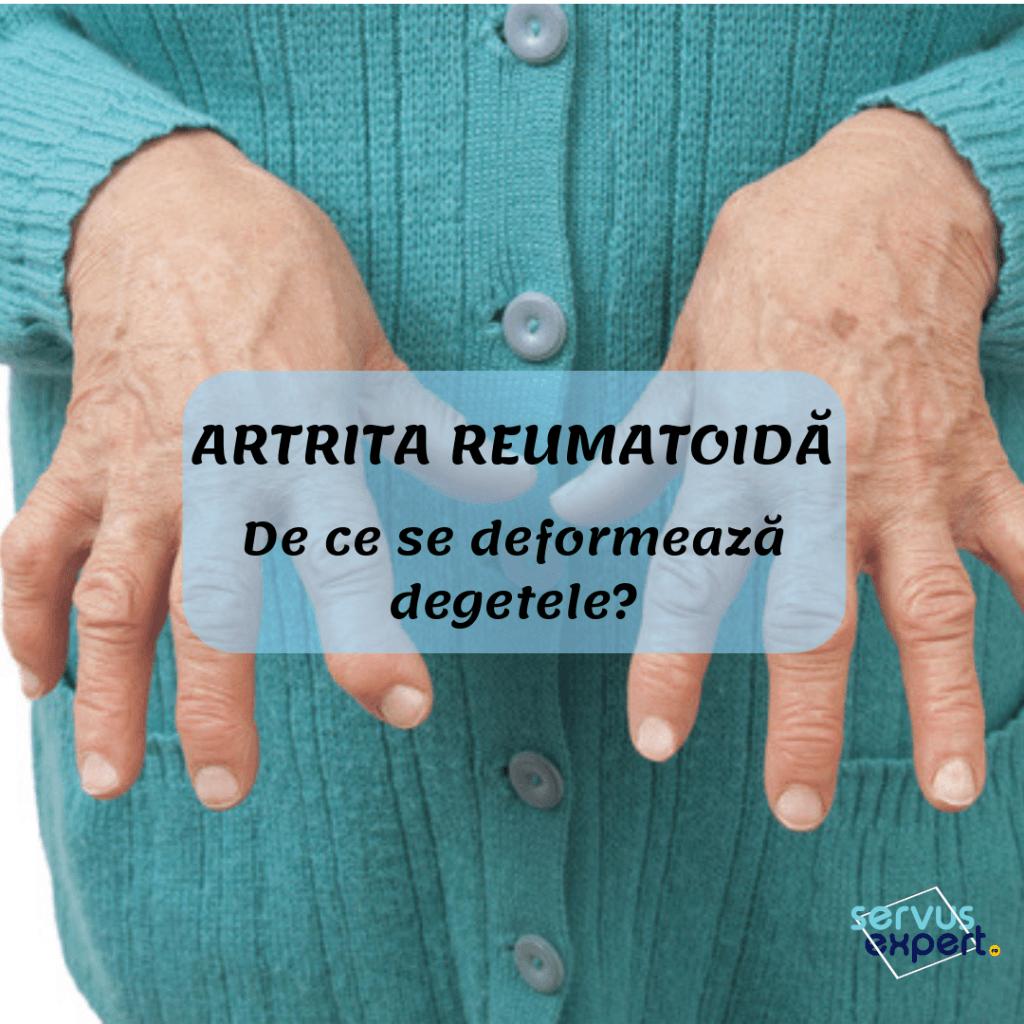 deformare articulară în artrita reumatoidă
