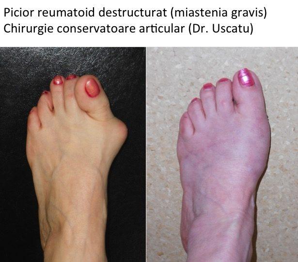 artrita reumatoidă a piciorului cum se tratează