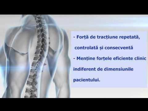 Artroza șoldului – ce este, diagnostic și tratament – thecage.ro
