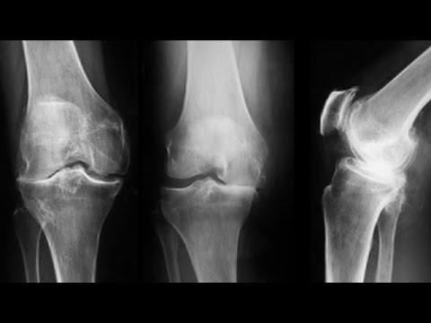 tratamentul artrozei genunchiului cu bilă